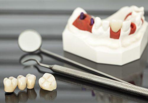 crowns and bridges parkmall dental