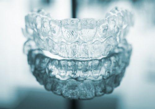 invislaign parkmall dental